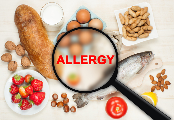 Level 3 Management of Food Allergies Awareness on Campus